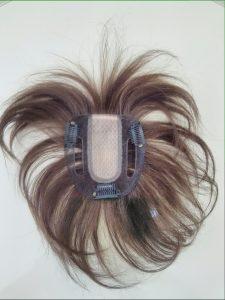 円形脱毛症には医療用ウィッグのヘアピースがぴったり
